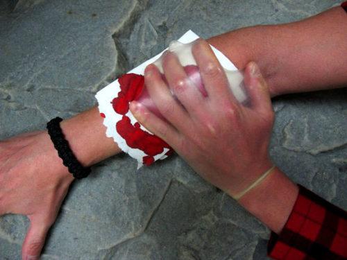 utilisation d'un préservatif comme gant stérile en cas de plaie
